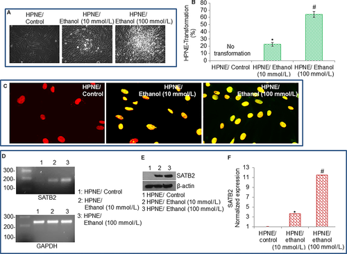 Chronic ethanol exposure of human pancreatic normal ductal epithelial cells induces cancer stem cell phenotype through SATB2
